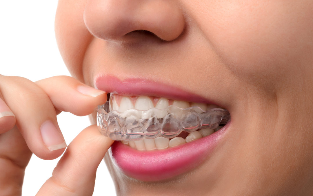 Lisp? Jaw Pain? Maybe it's time to consider Invisalign